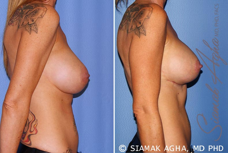 Orange County Newport Beach Breast Lift with Augmentation 11 Right View