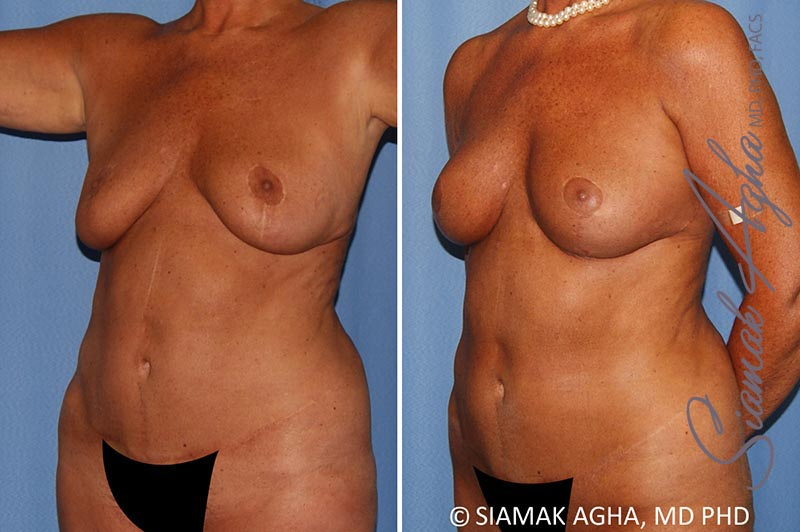 Orange County Newport Beach Breast Lift with Augmentation 12 Front Left View