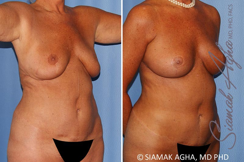 Orange County Newport Beach Breast Lift with Augmentation 12 Front Right View