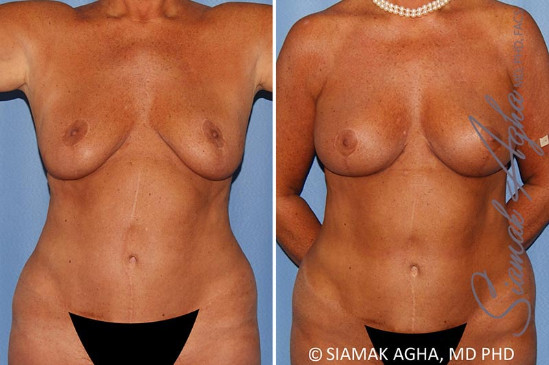 Orange County Newport Beach Breast Lift with Augmentation 12 Front View