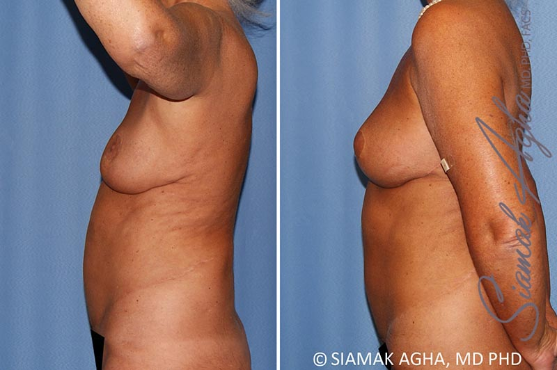 Orange County Newport Beach Breast Lift with Augmentation 12 Left View