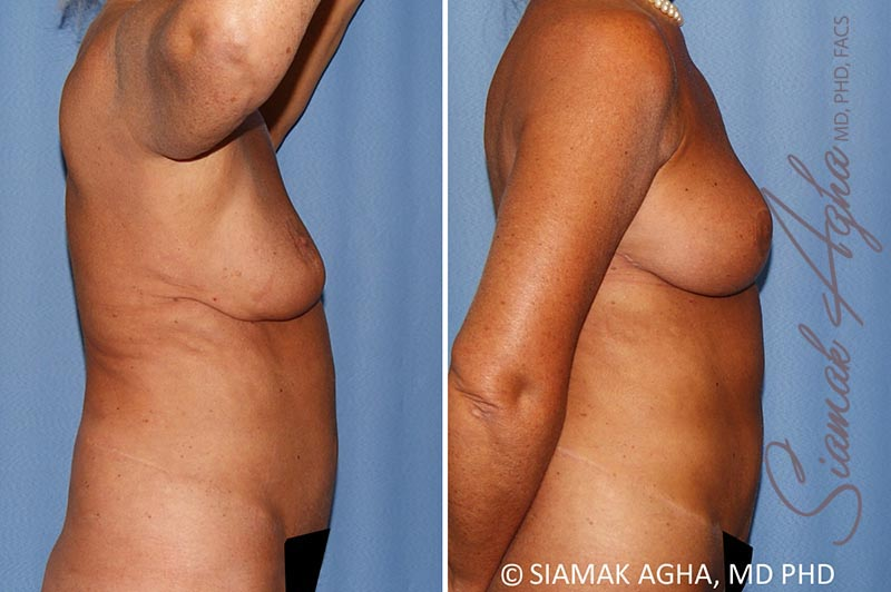 Orange County Newport Beach Breast Lift with Augmentation 12 Right View
