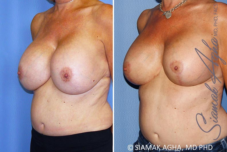 Orange County Newport Beach Breast Lift with Augmentation 13 Front Left View