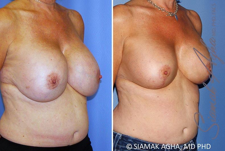 Orange County Newport Beach Breast Lift with Augmentation 13 Front Right View