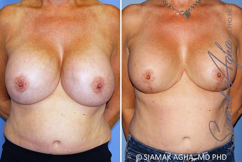 Orange County Newport Beach Breast Lift with Augmentation 13 Front View