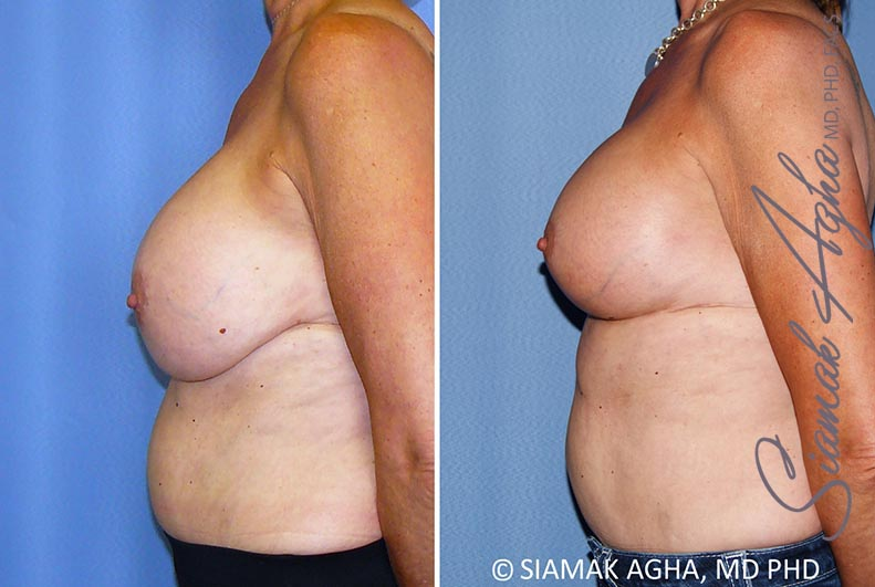 Orange County Newport Beach Breast Lift with Augmentation 13 Left View