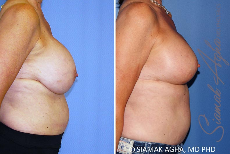 Orange County Newport Beach Breast Lift with Augmentation 13 Right View