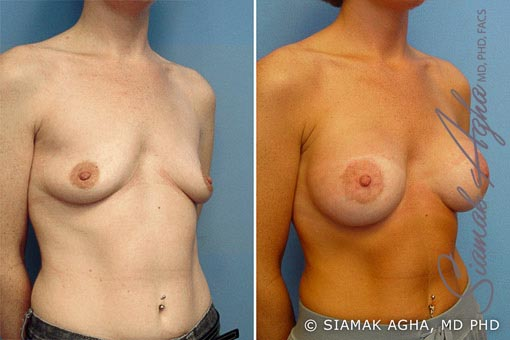 Orange County Newport Beach Breast Lift with Augmentation 2 Front Right View