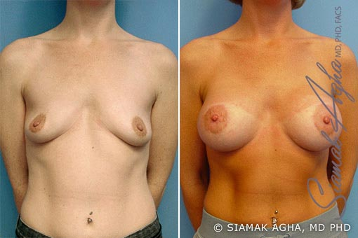 Orange County Newport Beach Breast Lift with Augmentation Patient 2