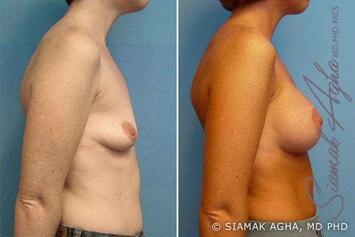 Orange County Newport Beach Breast Lift with Augmentation 2 Right View
