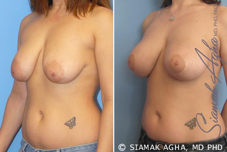 Orange County Newport Beach Breast Lift with Augmentation 3 Front Left View