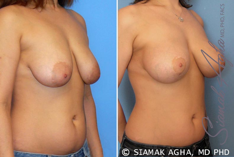 Orange County Newport Beach Breast Lift with Augmentation 3 Front Right View