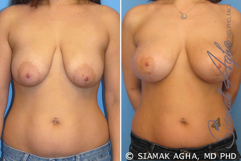 Orange County Newport Beach Breast Lift with Augmentation 3 Front View