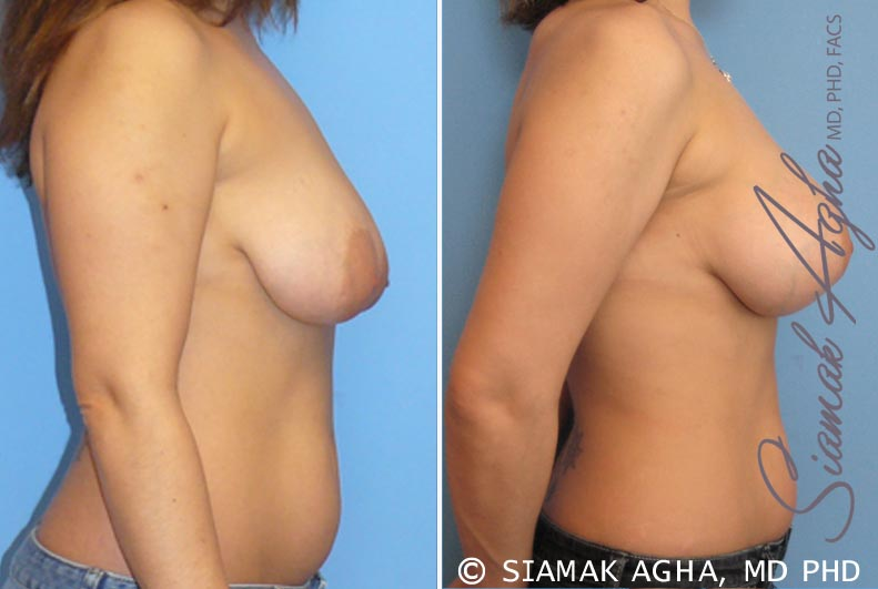 Orange County Newport Beach Breast Lift with Augmentation 3 Right View