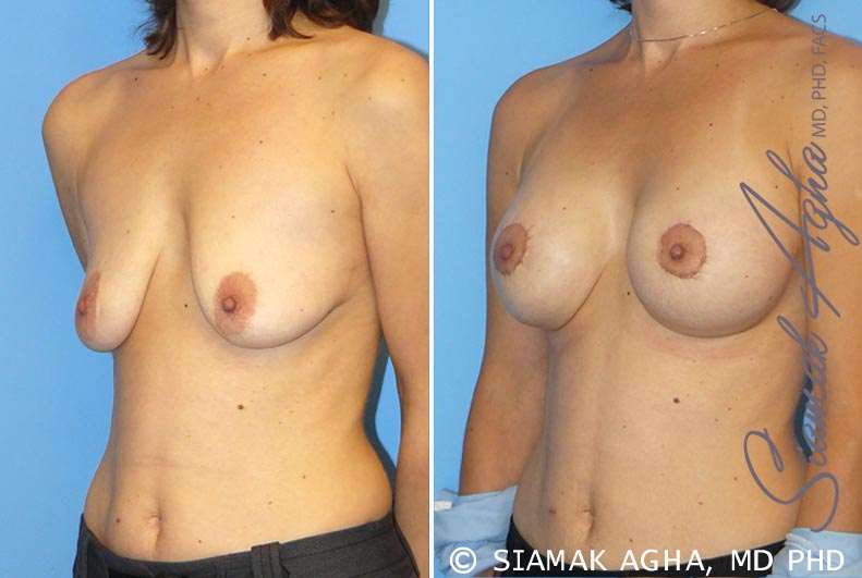 Orange County Newport Beach Breast Lift with Augmentation 4 Front Left View
