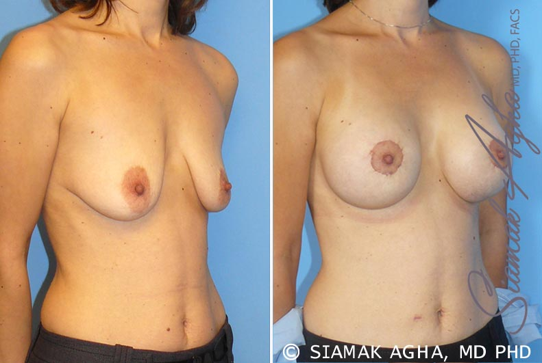 Orange County Newport Beach Breast Lift with Augmentation 4 Front Right View