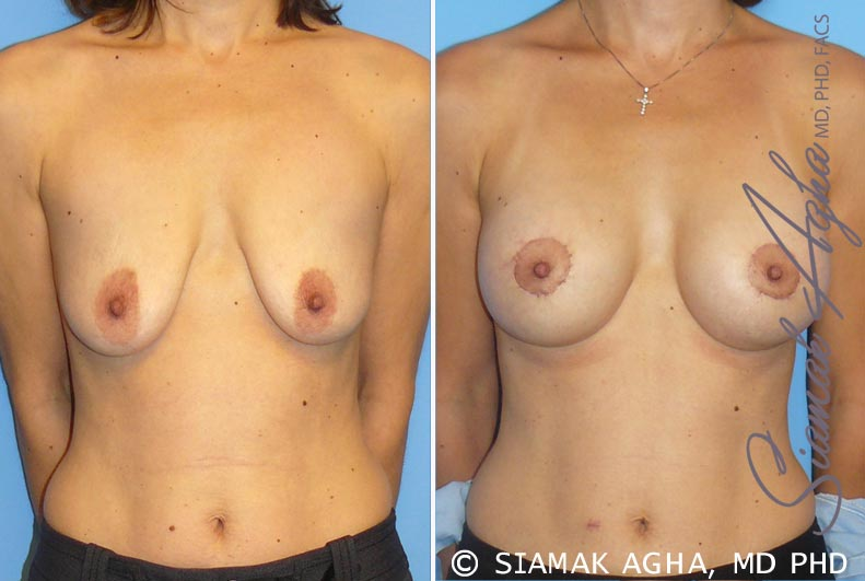 Orange County Newport Beach Breast Lift with Augmentation 4 Front View