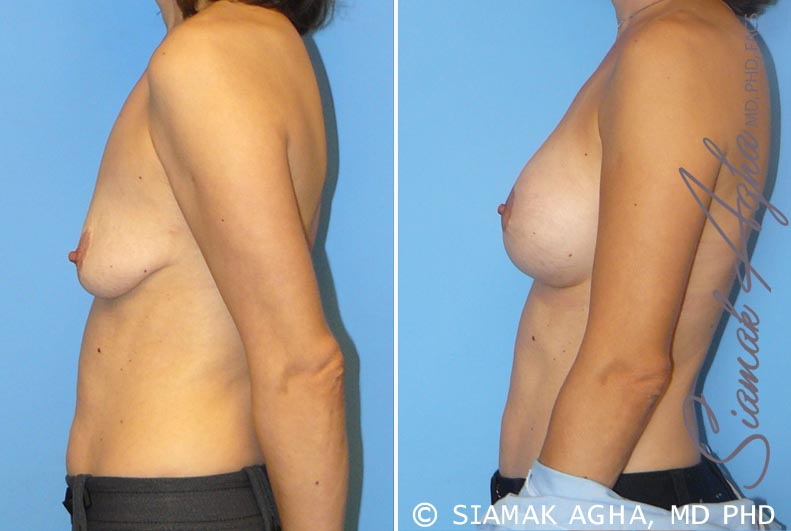 Orange County Newport Beach Breast Lift with Augmentation 4 Left View