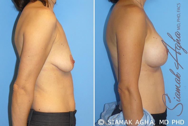 Orange County Newport Beach Breast Lift with Augmentation 4 Right View