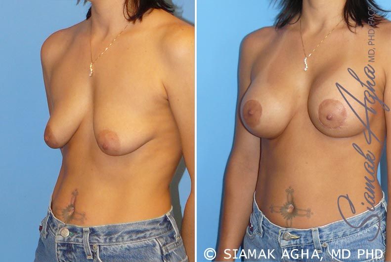 Orange County Newport Beach Breast Lift with Augmentation 5 Front Left View