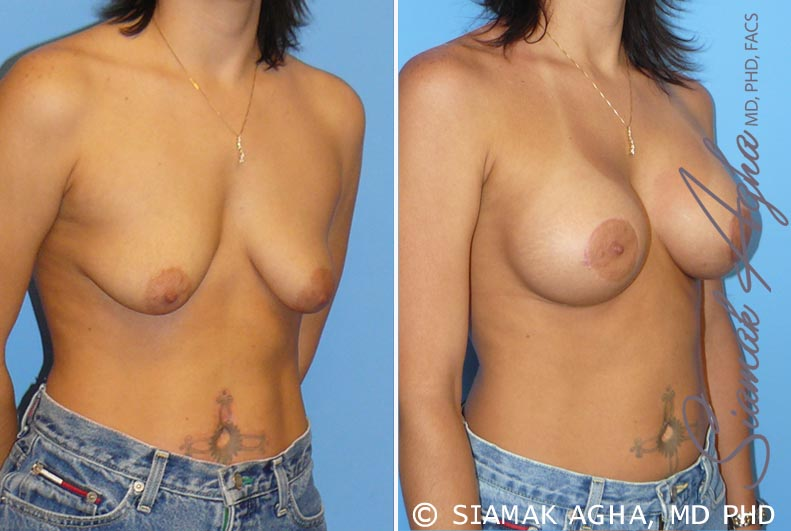 Orange County Newport Beach Breast Lift with Augmentation 5 Front Right View