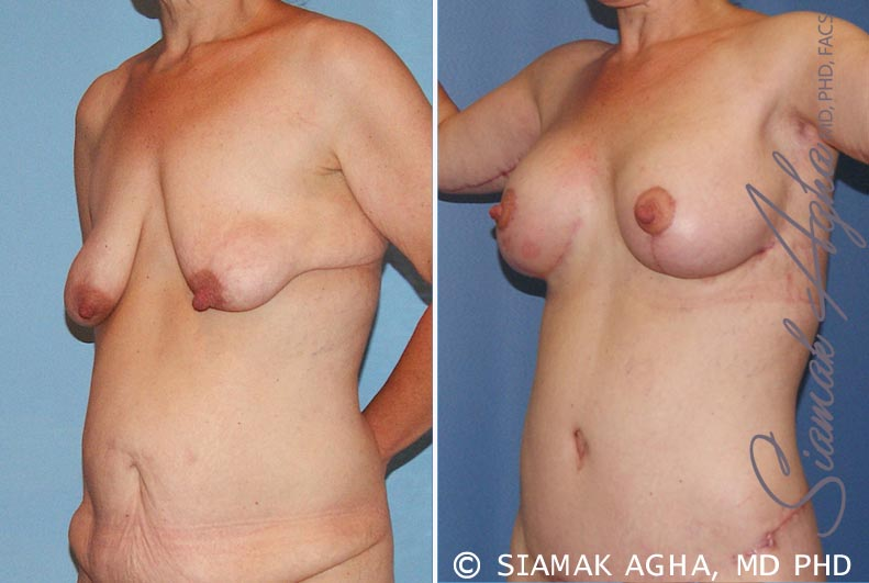 Orange County Newport Beach Breast Lift with Augmentation 6 Front Left View