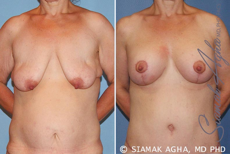 Orange County Newport Beach Breast Lift with Augmentation Patient 6