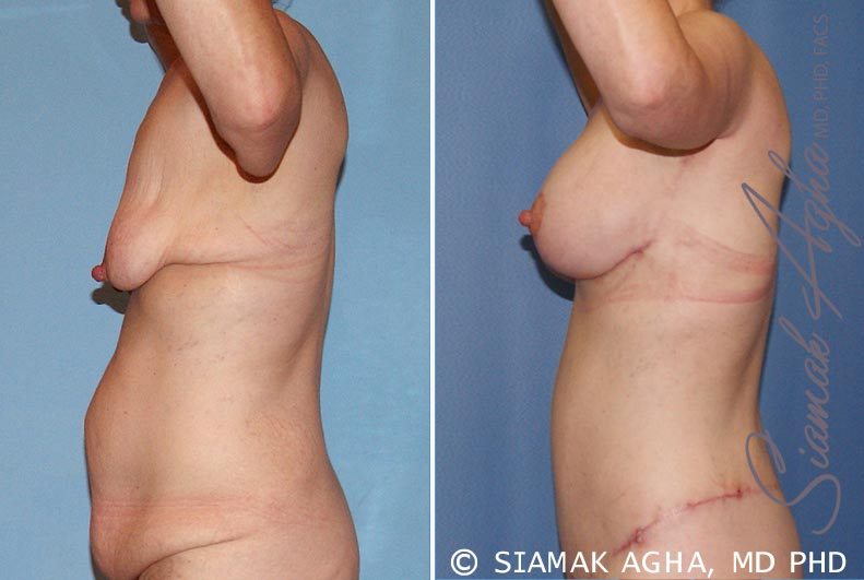 Orange County Newport Beach Breast Lift with Augmentation 6 Left View