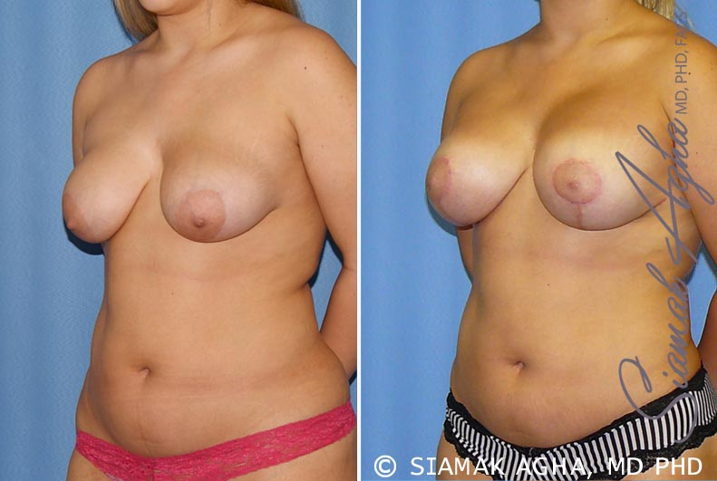 Orange County Newport Beach Breast Lift with Augmentation 7 Front Left View