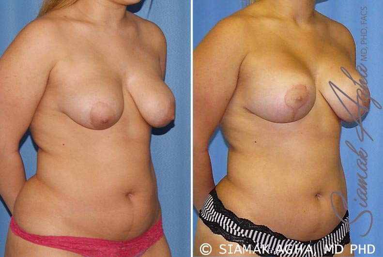 Orange County Newport Beach Breast Lift with Augmentation 7 Front Right View