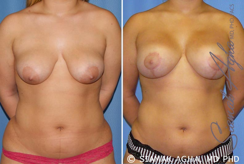 Orange County Newport Beach Breast Lift with Augmentation 7 Front View