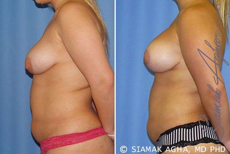 Orange County Newport Beach Breast Lift with Augmentation 7 Left View