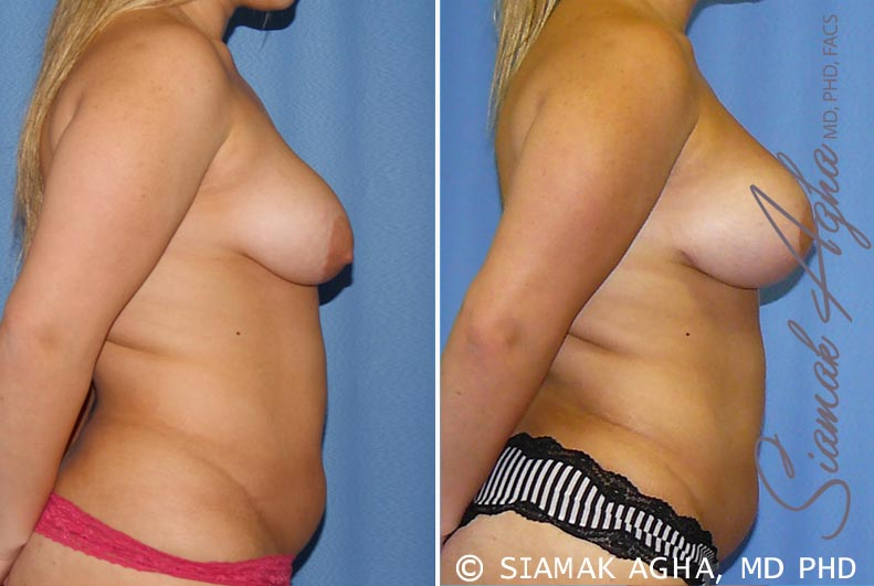 Orange County Newport Beach Breast Lift with Augmentation 7 Right View