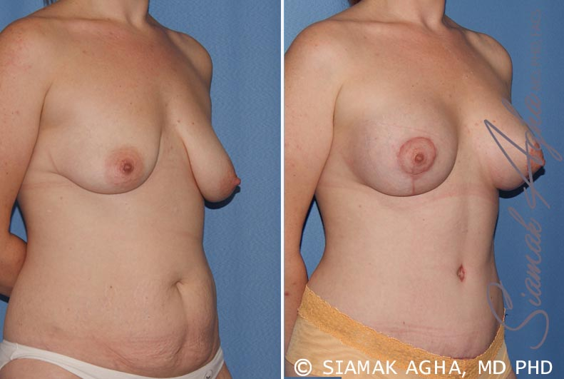 Orange County Newport Beach Breast Lift with Augmentation 8 Front Right View