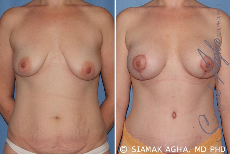 Orange County Newport Beach Breast Lift with Augmentation 8 Front View
