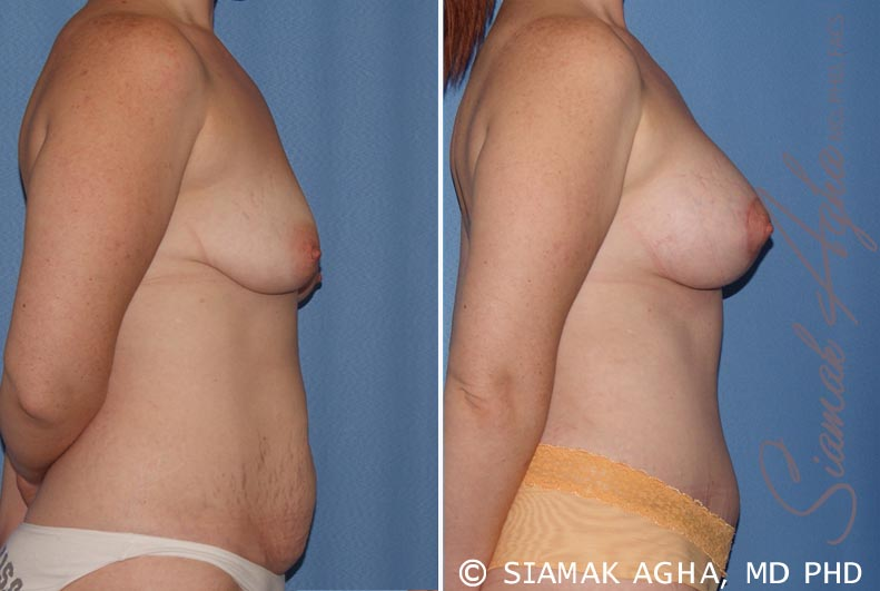 Orange County Newport Beach Breast Lift with Augmentation 8 Right View