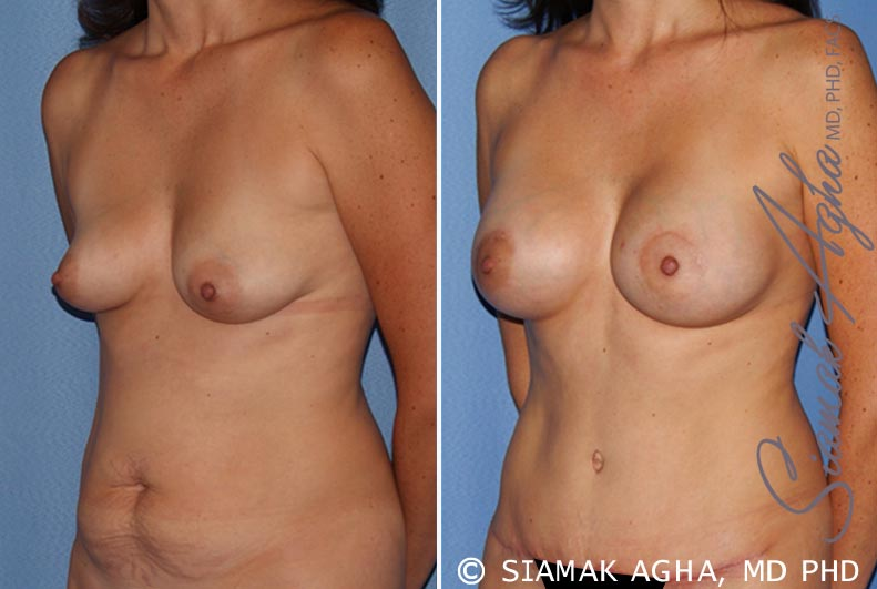 Orange County Newport Beach Breast Lift with Augmentation 9 Front Left View