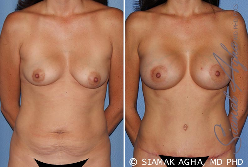 Orange County Newport Beach Breast Lift with Augmentation 9 Front View