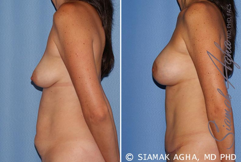 Orange County Newport Beach Breast Lift with Augmentation 9 Left View