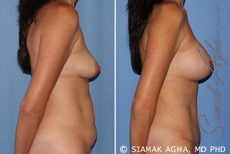 Orange County Newport Beach Breast Lift with Augmentation 9 Right View