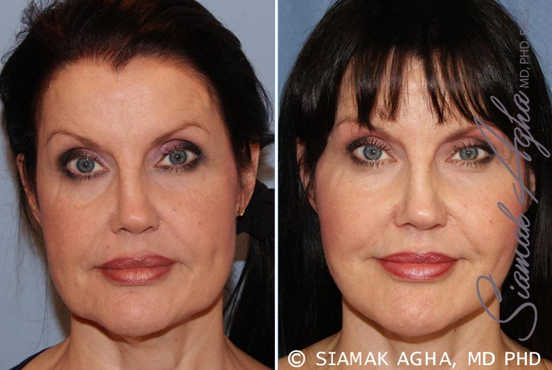 Orange County Newport Beach Facelift Patient 10