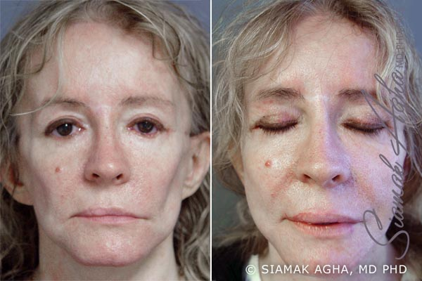 Orange County Newport Beach Facelift Patient 11