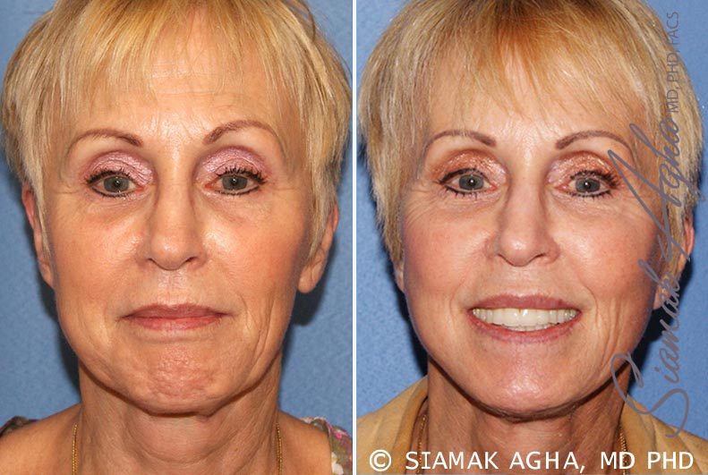 Orange County Newport Beach Facelift Patient 12