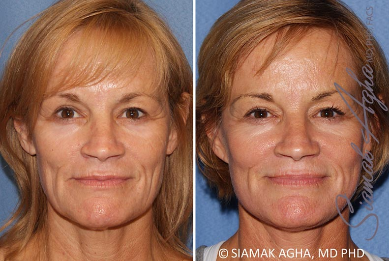 Orange County Newport Beach Facelift Patient 13
