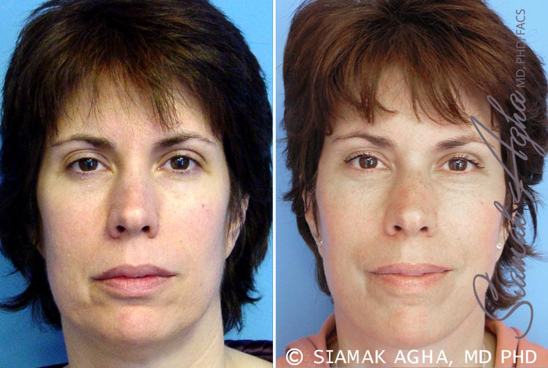 Orange County Newport Beach Facelift Patient 5