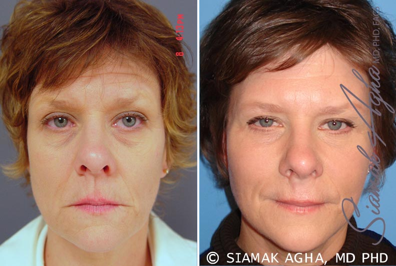 Orange County Newport Beach Facelift Patient 6