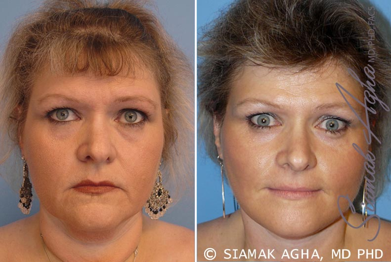 Orange County Newport Beach Facelift Patient 8