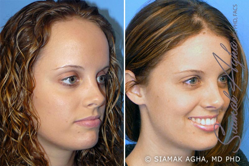 Orange County Newport Beach Forehead Reduction 1 Front Right View