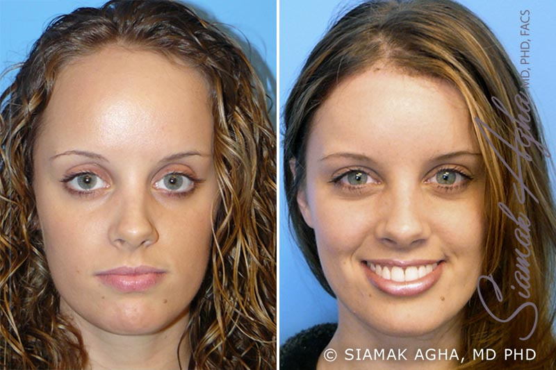 Orange County Newport Beach Forehead Reduction 1 Front View