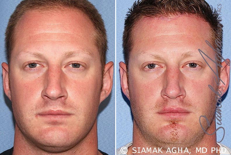 Orange County Newport Beach Forehead Reduction Patient 2